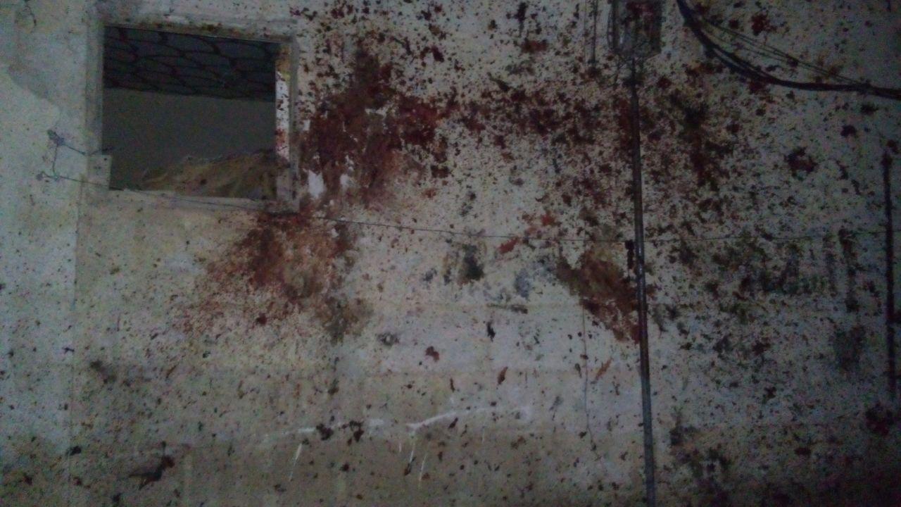 Photo of ارتقاء 8 شهداء واصابة 7 مواطنين بتفجير ارهابي انتحاري في منطقة كفرسوسة
