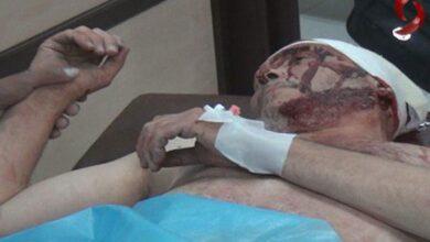 Photo of إصابات في حلب بسقوط قذائف صاروخية على أحياء ضمن المدينة