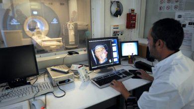 صورة اكتشاف نوع جديد من خلايا الدماغ يساعدنا على تذكر مكان متعلقاتنا الشخصية!