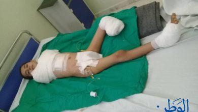 صورة بعد بتر 3 أطراف للطفل يزن العلاج مستمر في مشفى تشرين