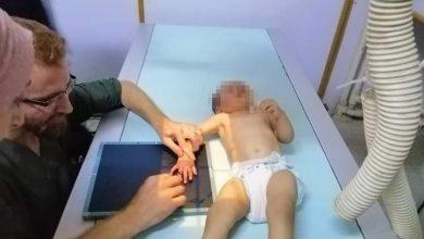 صورة إنقاذ يد طفلة علقت يدها بماكينة اللحمة وهي تعمل بالقنيطرة !؟
